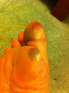 Blisters, after 12 hours