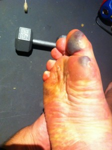 Blisters, after 36 hours